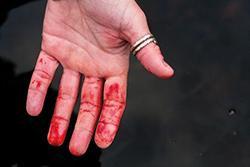 Räkna med blod. Gäddor har vassa tänder.